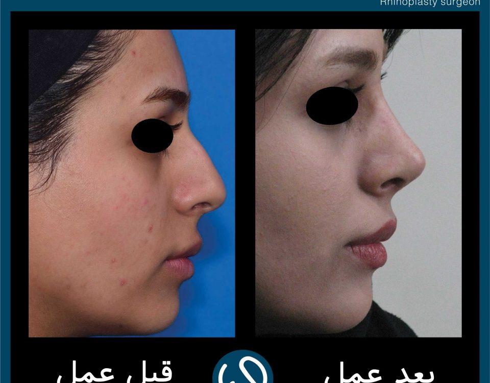 عکس قبل و بعد از عمل 100