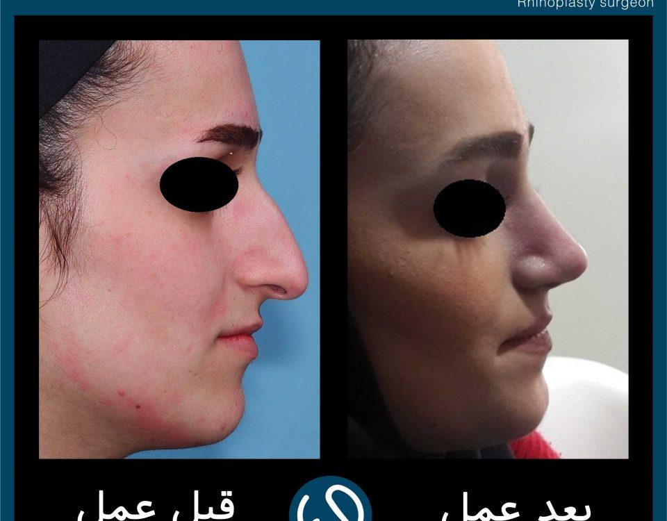عکس قبل و بعد از عمل 101