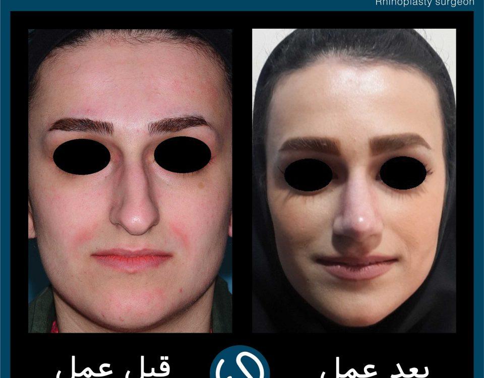 عکس قبل و بعد از عمل 102