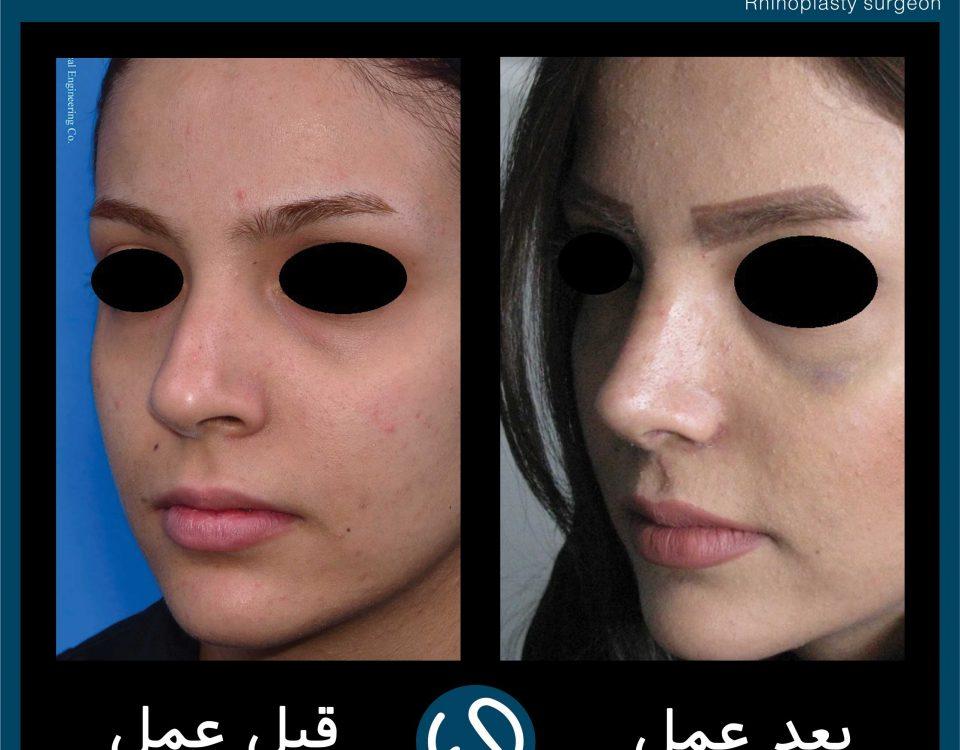 عکس قبل و بعد از عمل 103