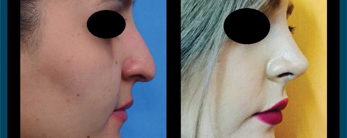 عکس قبل و بعد از عمل 104
