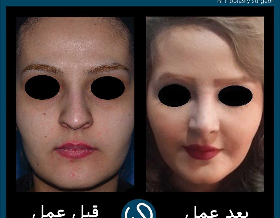 عکس قبل و بعد از عمل 105