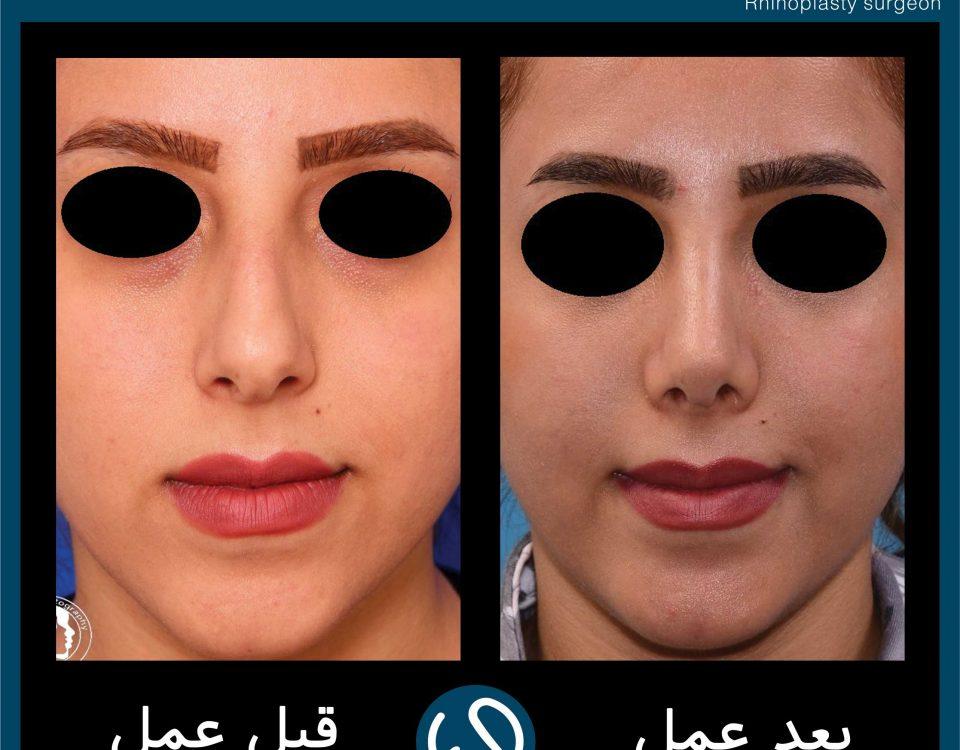 عکس قبل و بعد از عمل 106