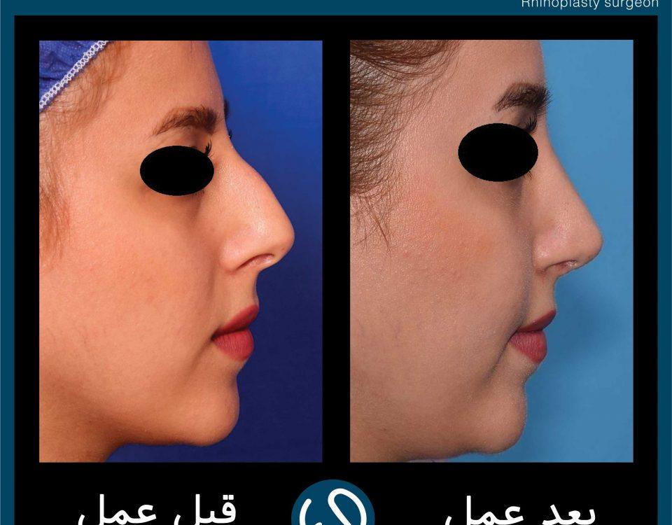عکس قبل و بعد از عمل 107