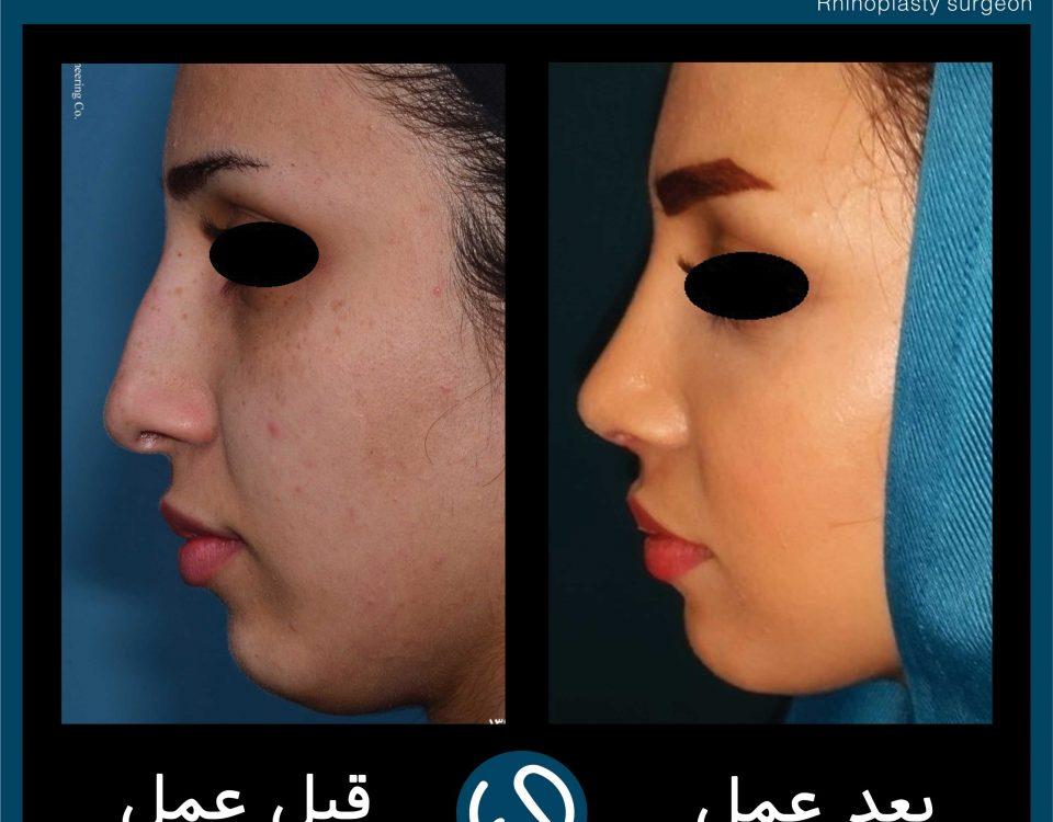 عکس قبل و بعد از عمل 108