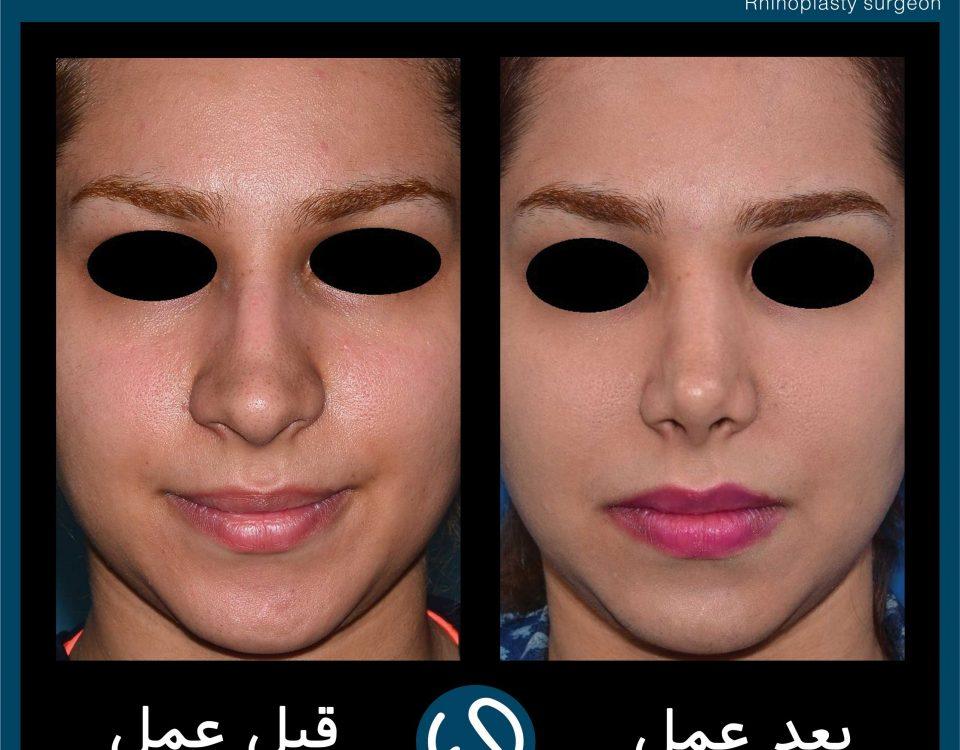 عکس قبل و بعد از عمل 109