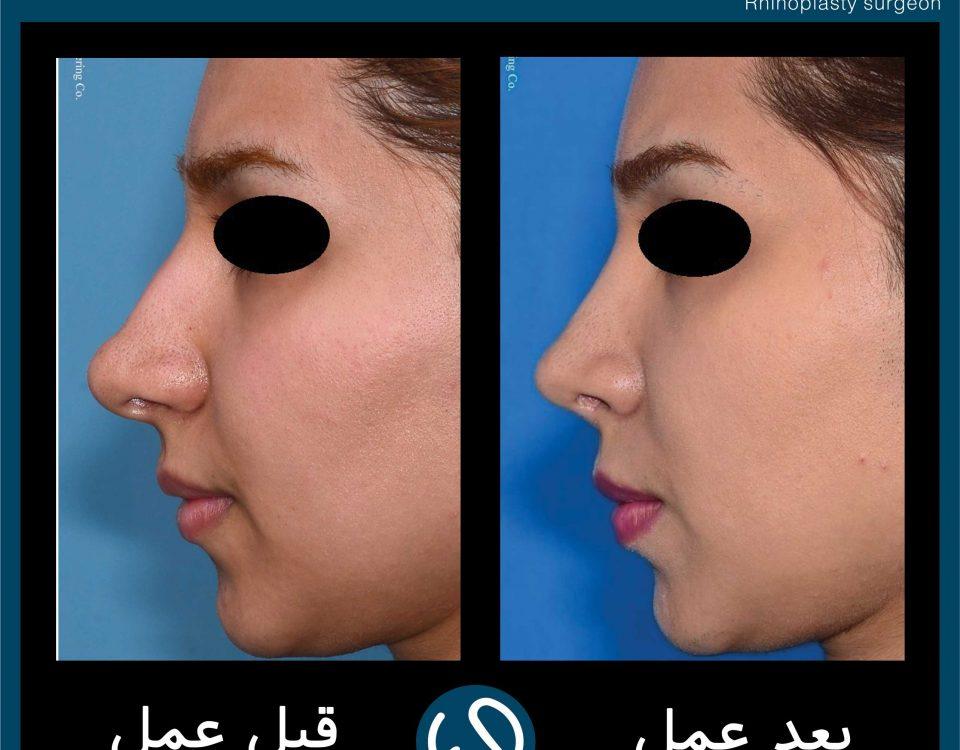 عکس قبل و بعد از عمل 110