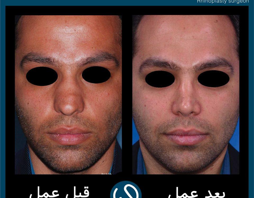 عکس قبل و بعد از عمل 111