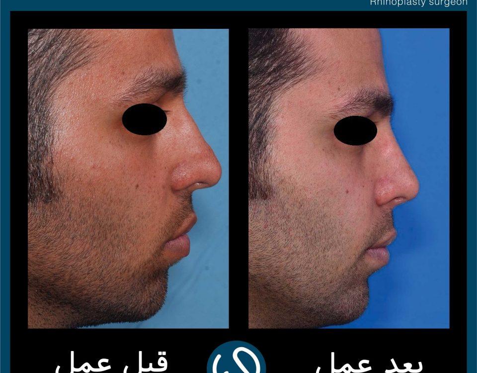 عکس قبل و بعد از عمل 112
