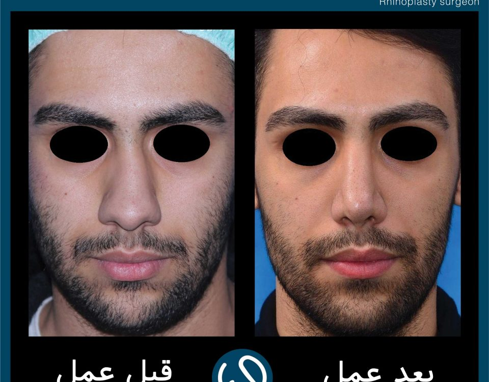 عکس قبل و بعد از عمل 113