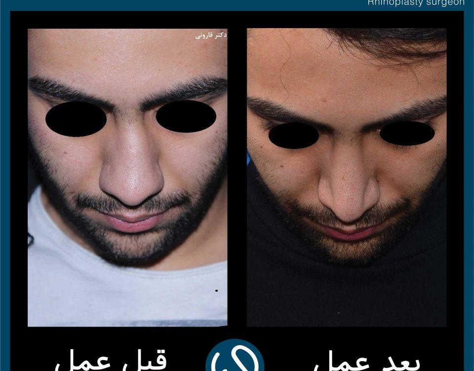 عکس قبل و بعد از عمل 114
