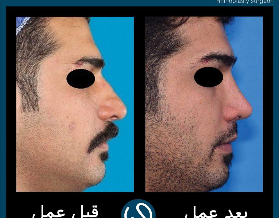 عکس قبل و بعد از عمل 117