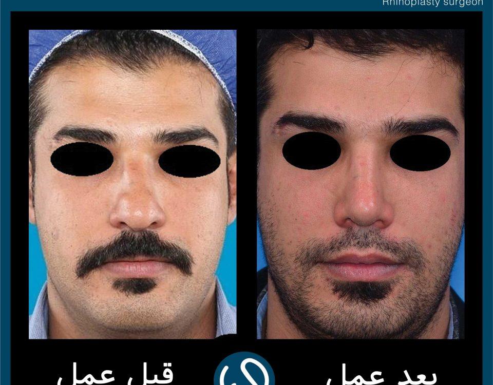 عکس قبل و بعد از عمل 118