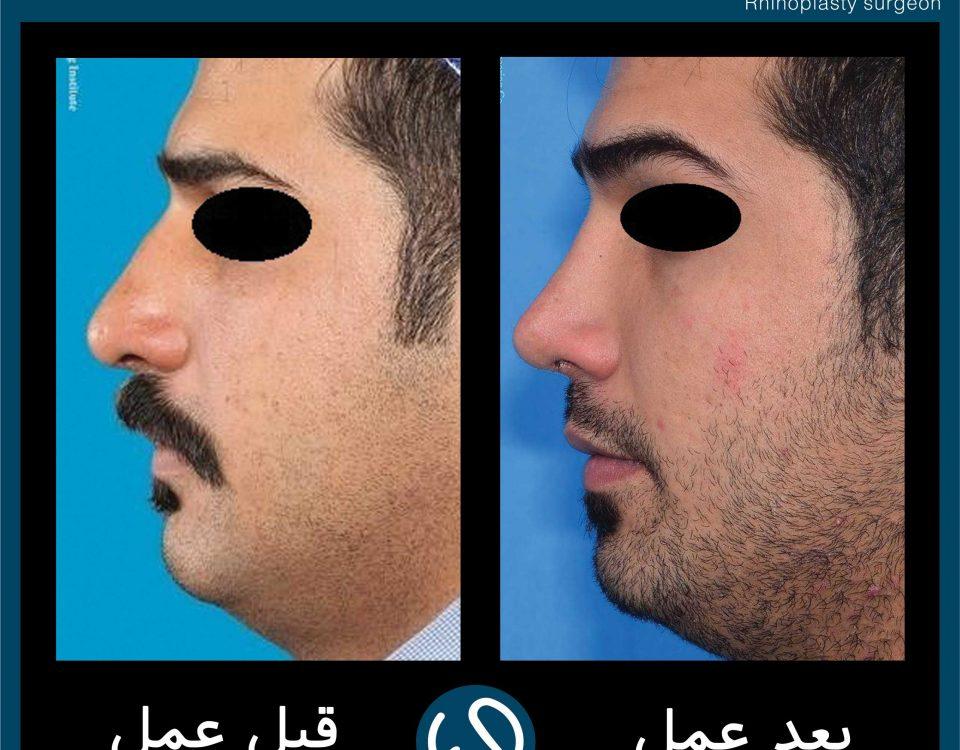 عکس قبل و بعد از عمل 119