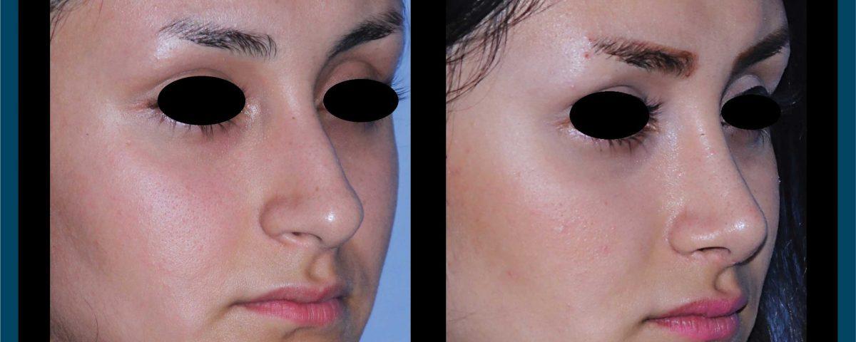 جراحی بینی عکس شماره سیزده