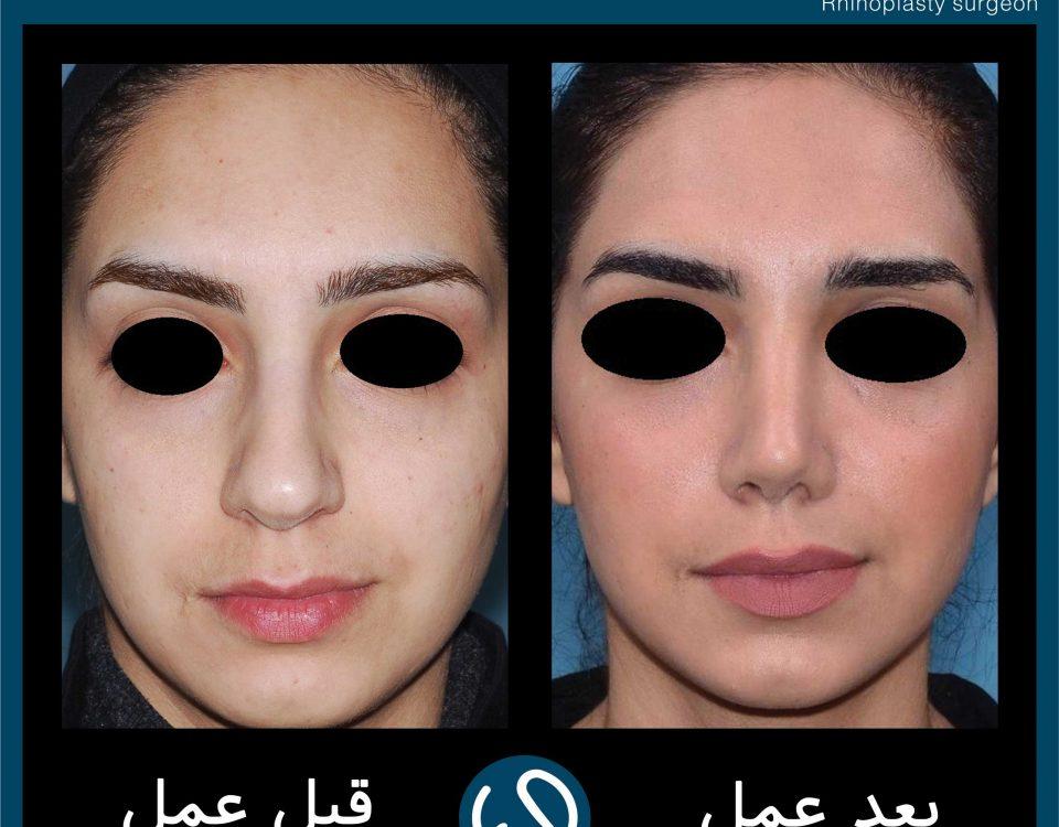 عکس قبل و بعد از عمل 53