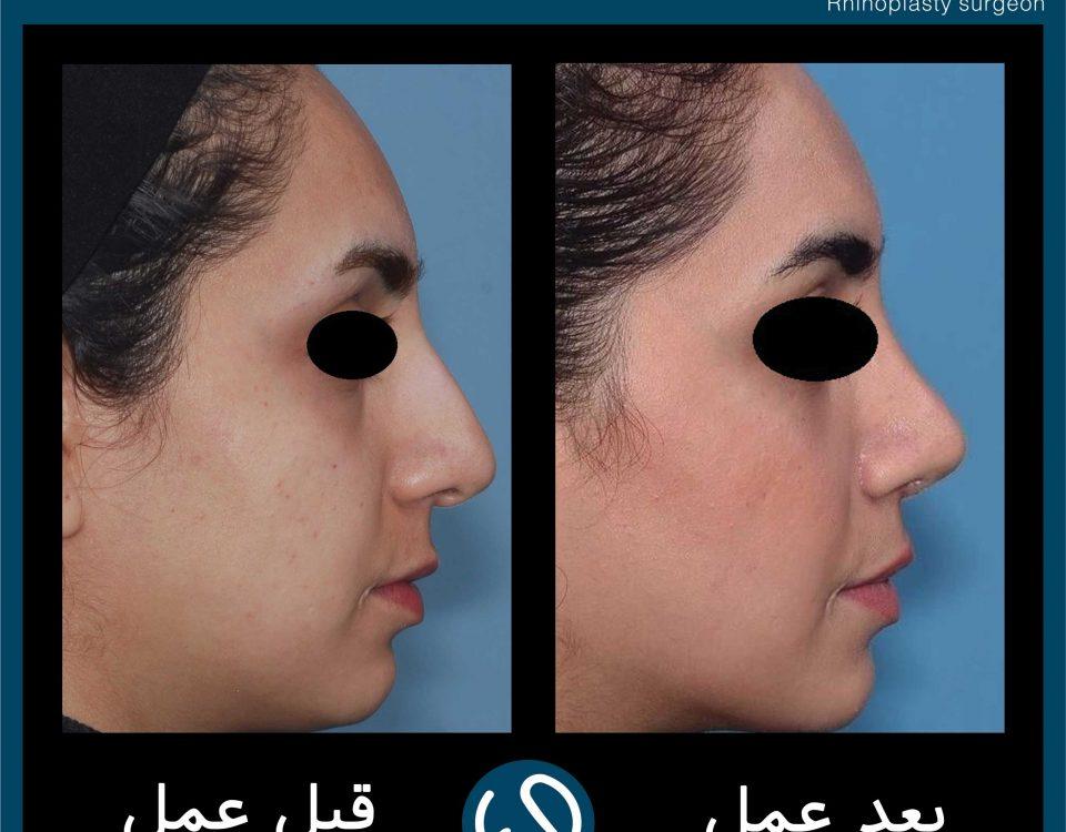 عکس قبل و بعد از عمل 54