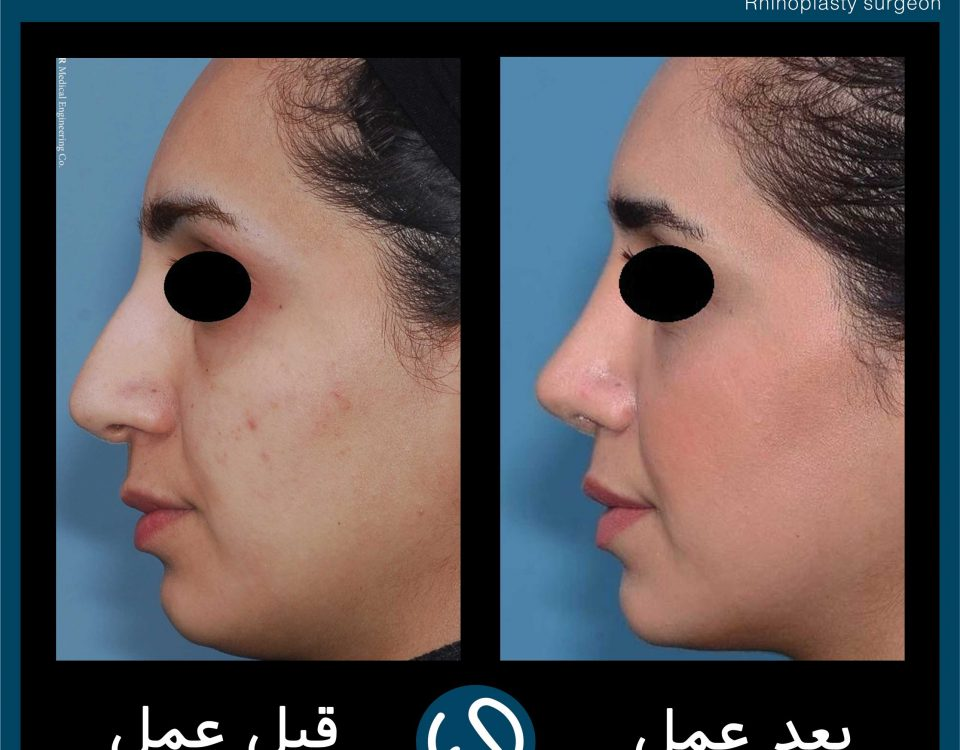 عکس قبل و بعد از عمل 55