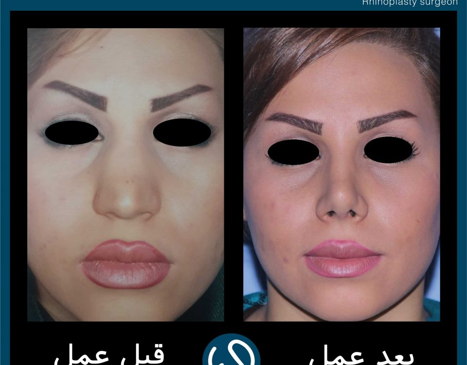 عکس قبل و بعد از عمل 56