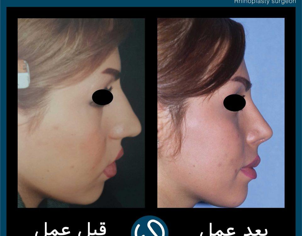 عکس قبل و بعد از عمل 57