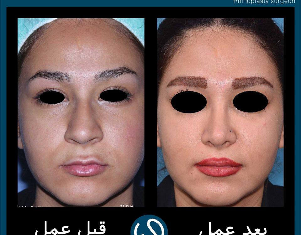 عکس قبل و بعد از عمل 58