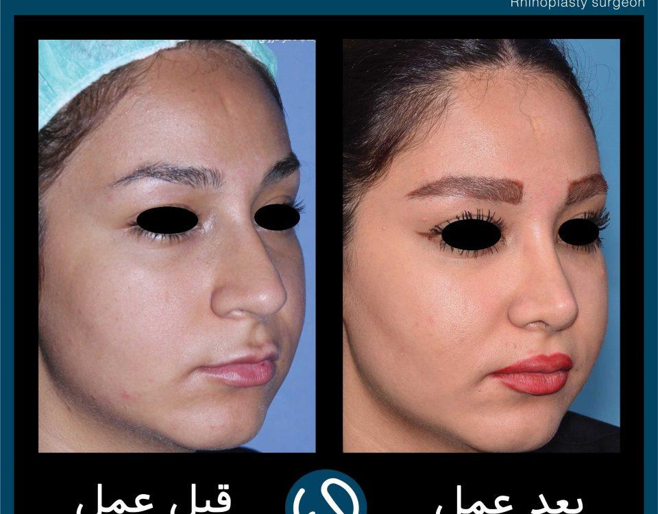 عکس قبل و بعد از عمل 60