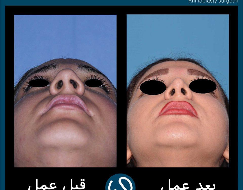 عکس قبل و بعد از عمل 61