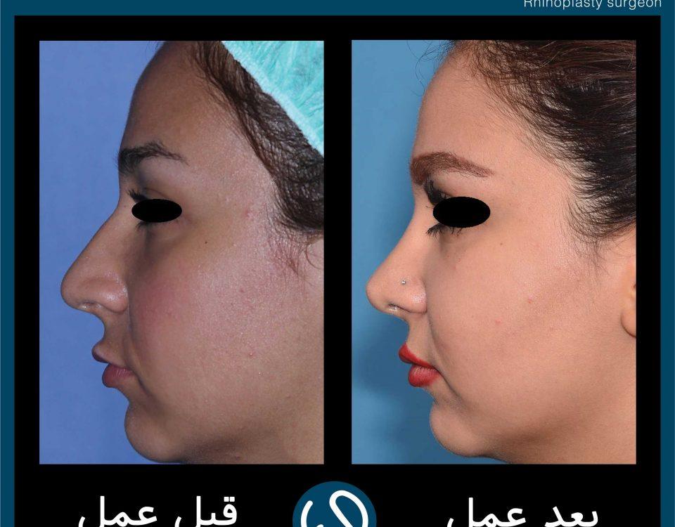 عکس قبل و بعد از عمل 62