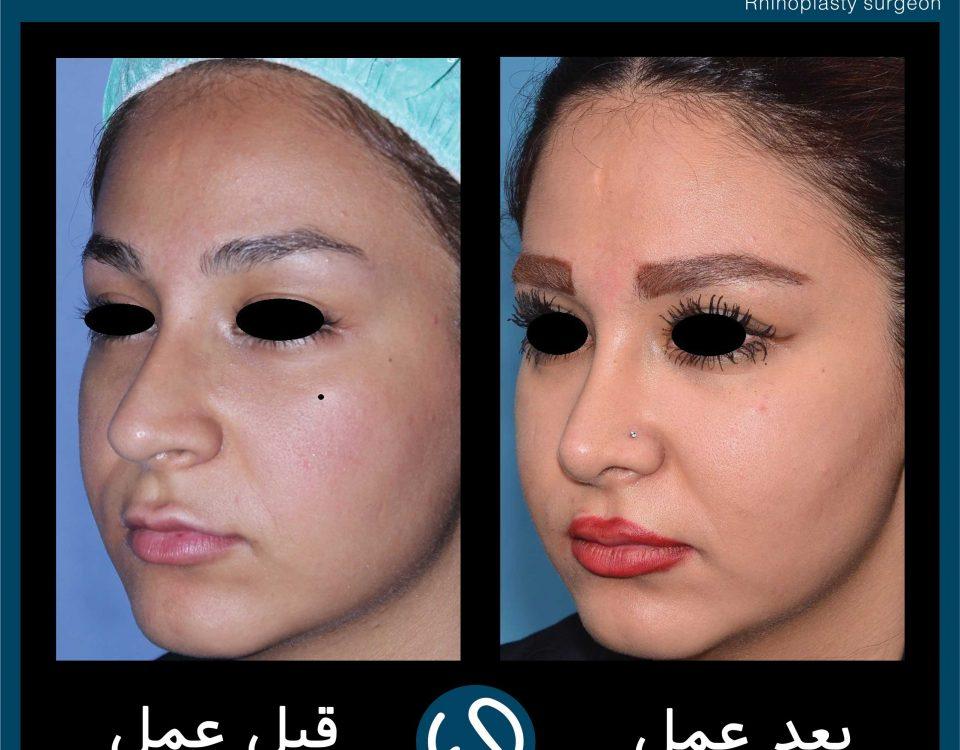 عکس قبل و بعد از عمل 63