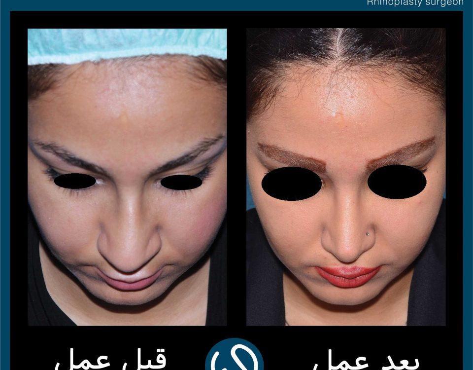عکس قبل و بعد از عمل 64