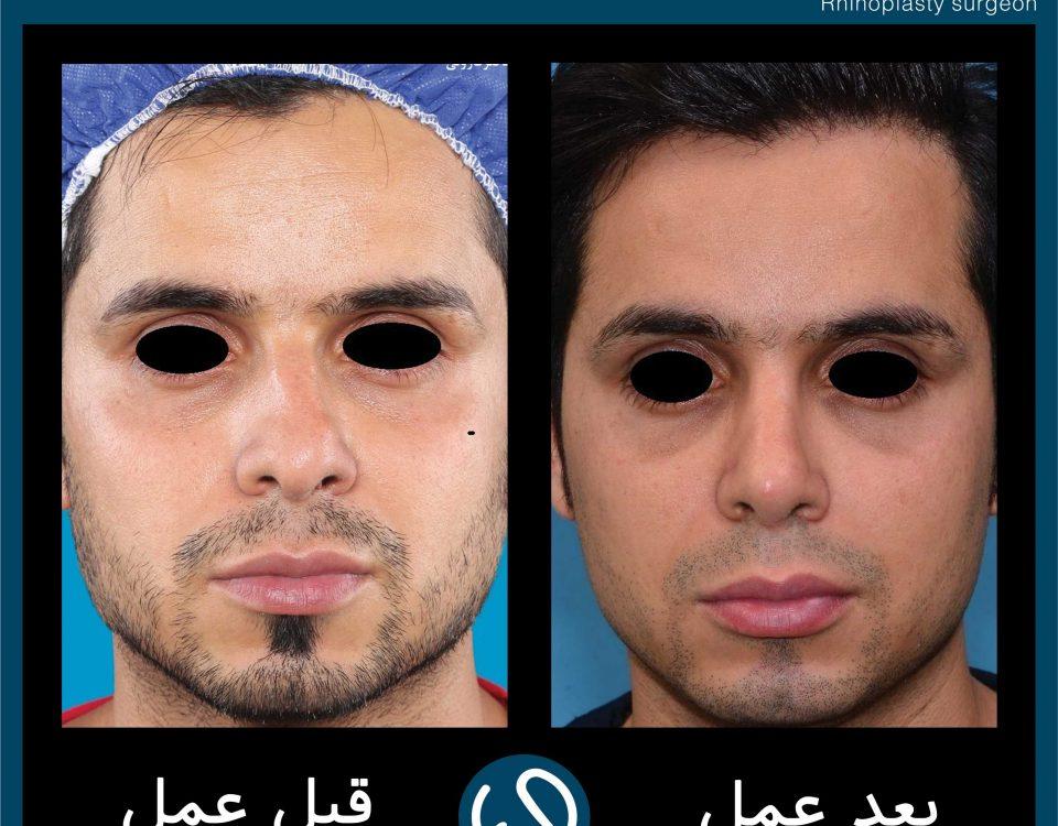 عکس قبل و بعد از عمل 65