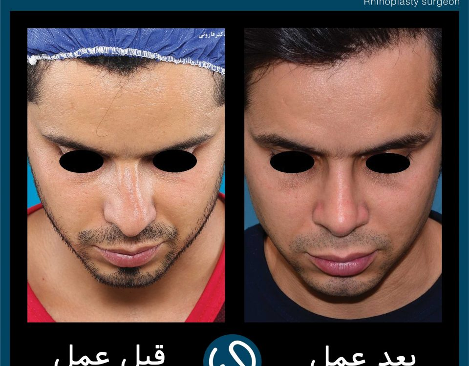 عکس قبل و بعد از عمل 66