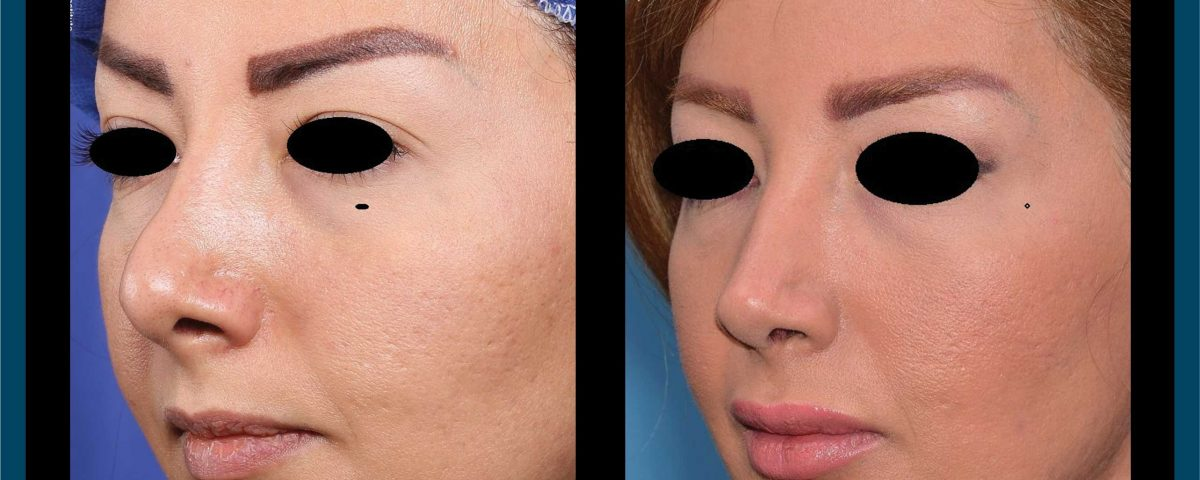 عکس قبل و بعد از عمل 67