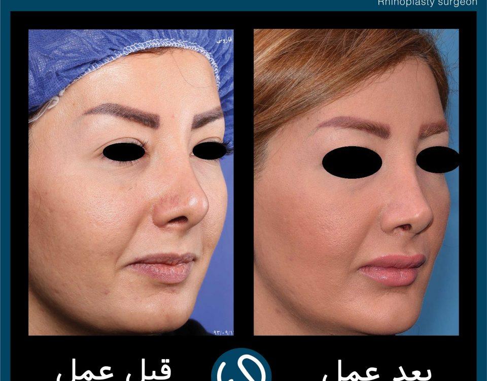 عکس قبل و بعد از عمل 68