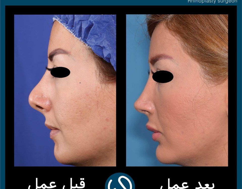 عکس قبل و بعد از عمل 69