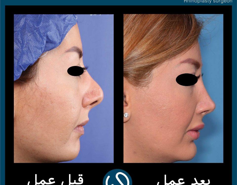 عکس قبل و بعد از عمل 70