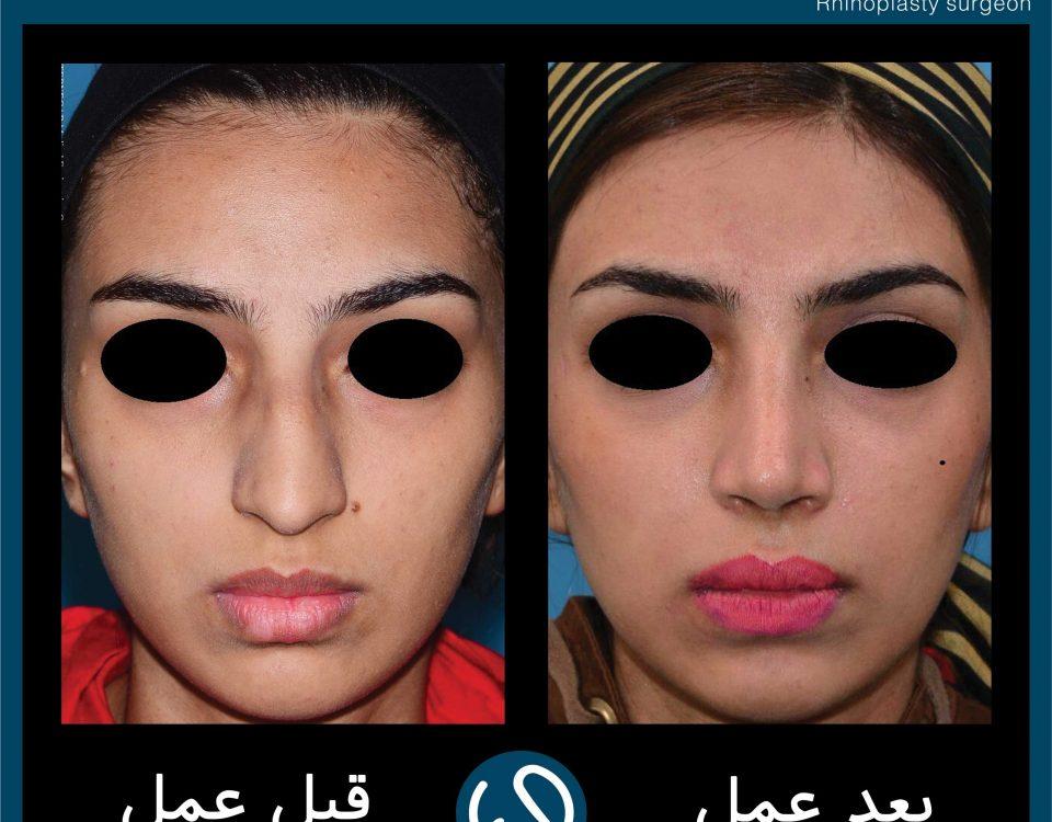 عکس قبل و بعد از عمل 72
