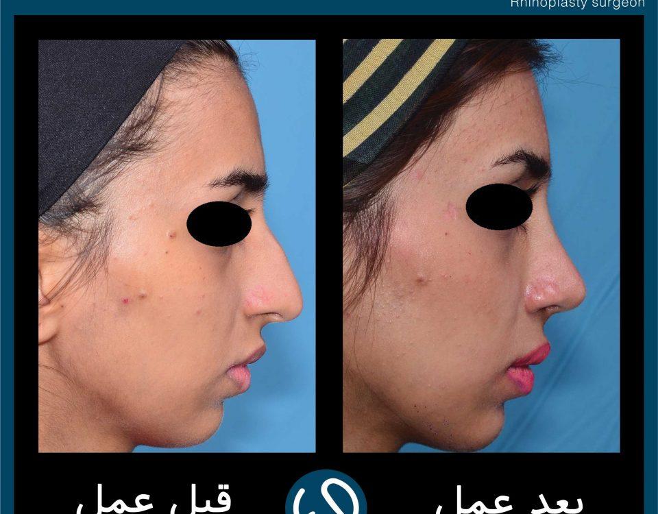 عکس قبل و بعد از عمل 73