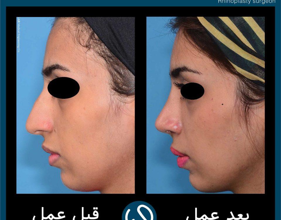 عکس قبل و بعد از عمل 74