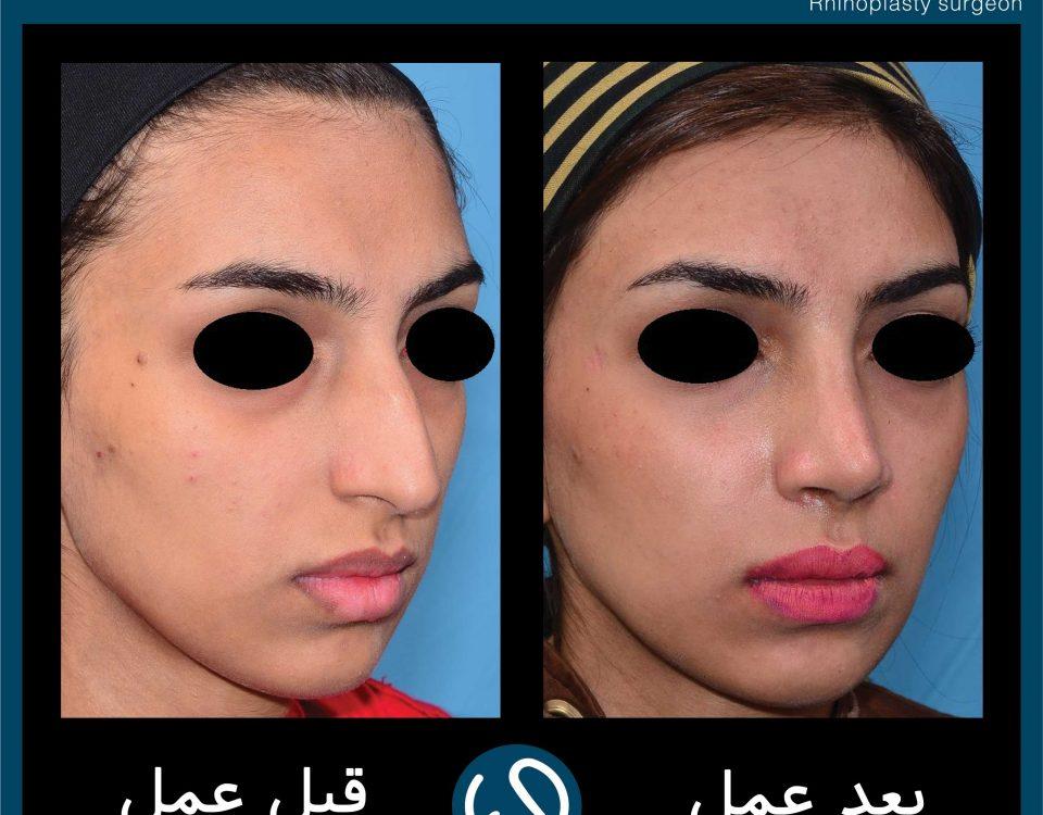 عکس قبل و بعد از عمل 75