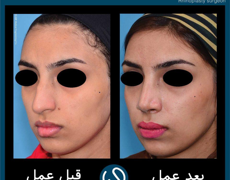 عکس قبل و بعد از عمل 76