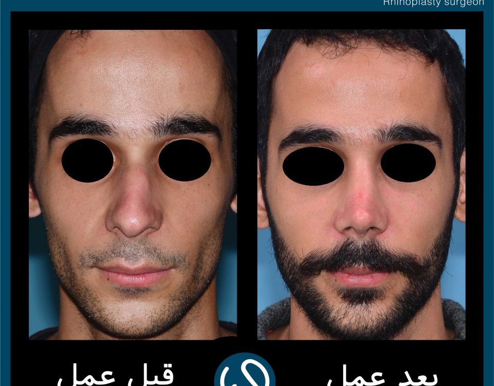 عکس قبل و بعد از عمل 77