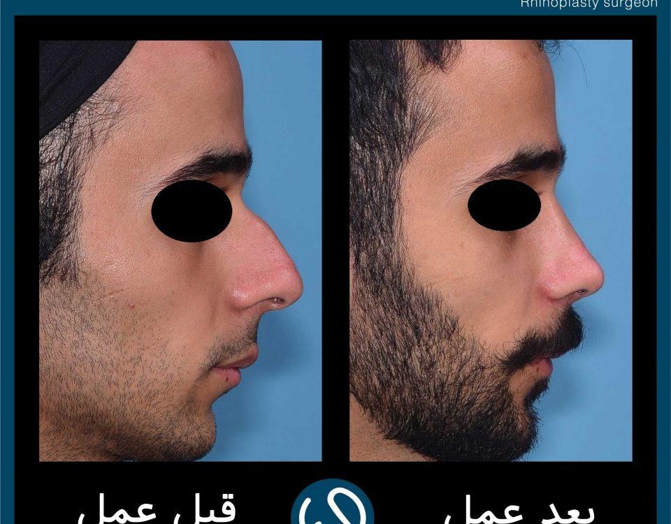 عکس قبل و بعد از عمل 78