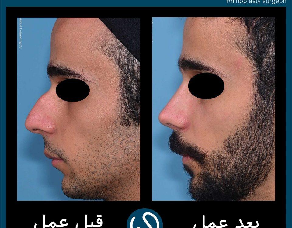 عکس قبل و بعد از عمل 79