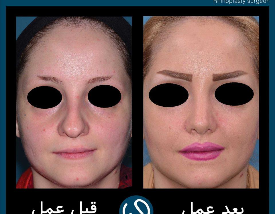 عکس قبل و بعد از عمل 80