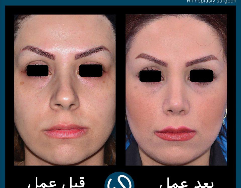 عکس قبل و بعد از عمل 82