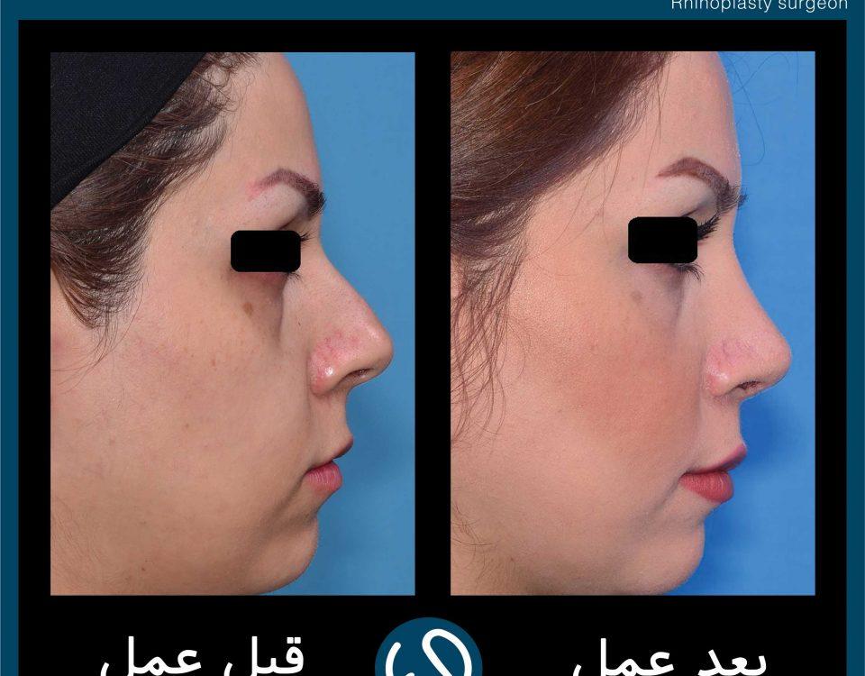عکس قبل و بعد از عمل 83