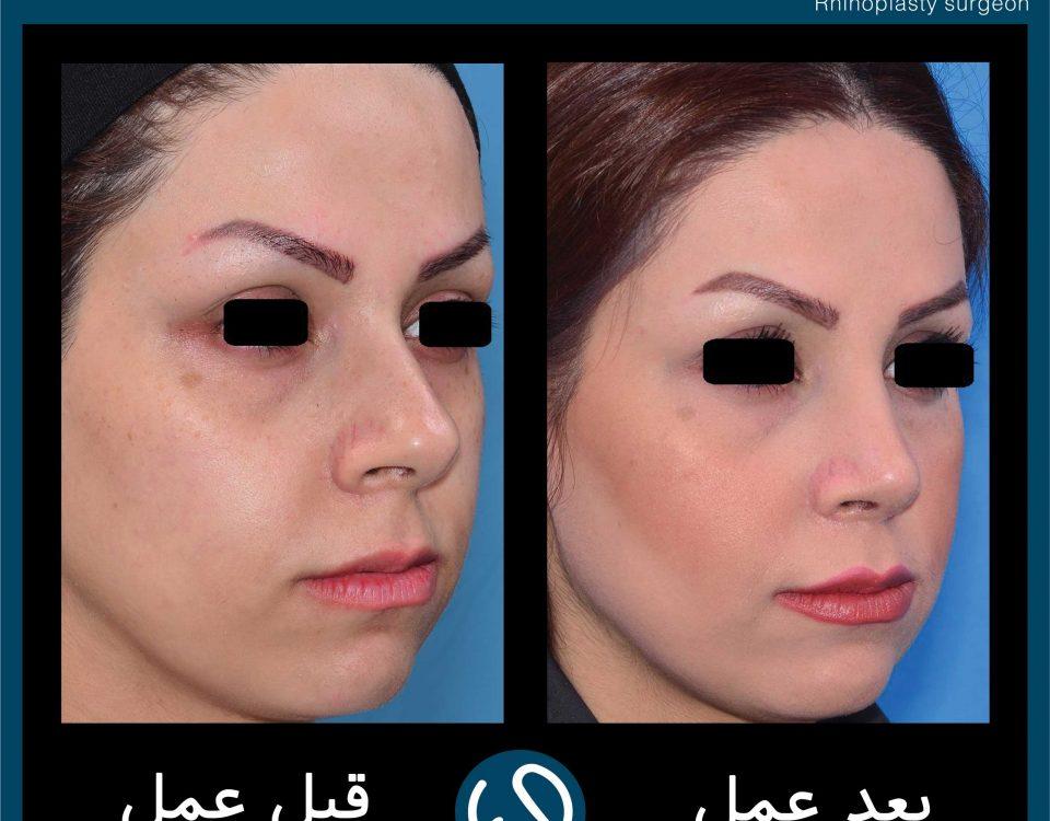 عکس قبل و بعد از عمل 84