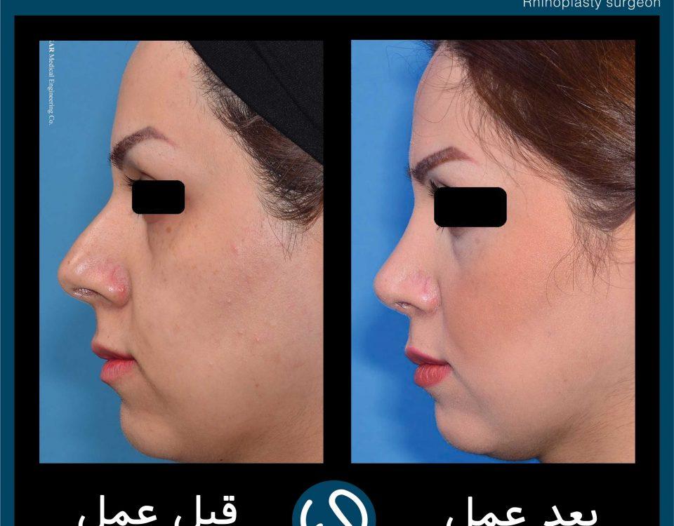عکس قبل و بعد از عمل 85