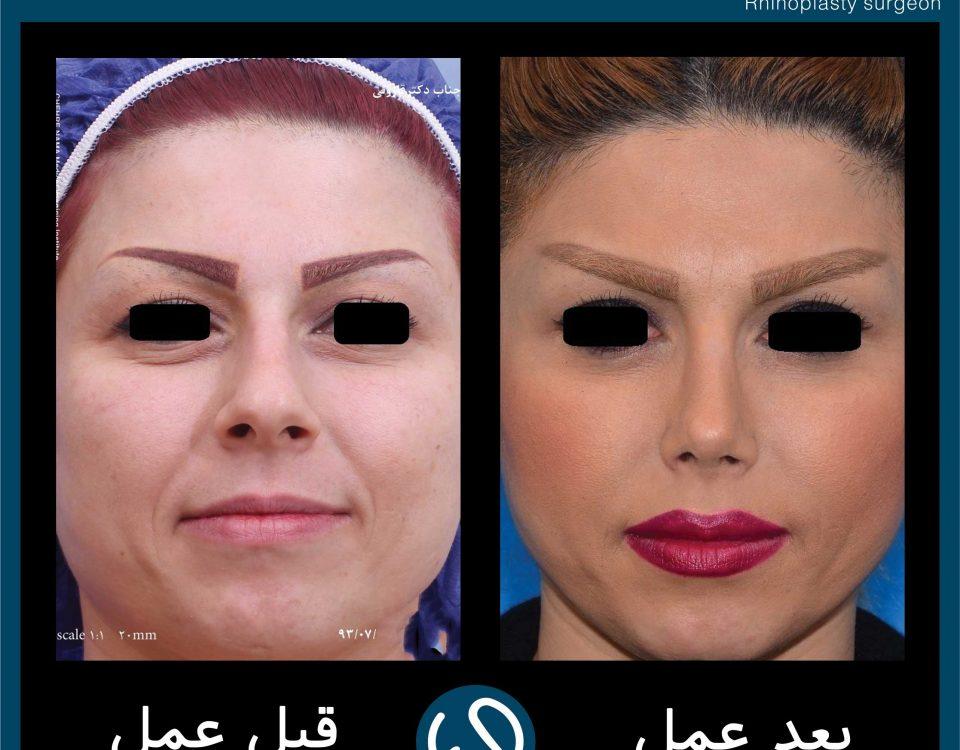 عکس قبل و بعد از عمل 86